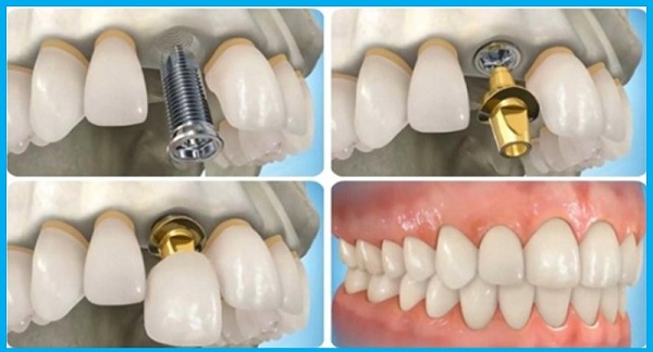 ghep-xuong-trong-implant